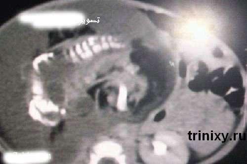 У Саудівській Аравії народилася вагітна дівчинка (6 фото)