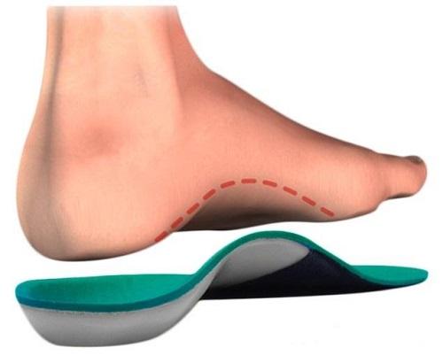 Ортопедические стельки при плоскостопии Познавательное